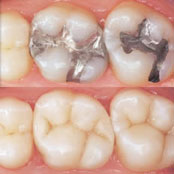Dental Fillings, Inlays & Onlays